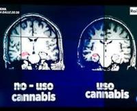 droga su cervello 1